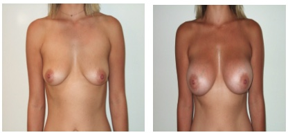 Figure 2. The nipple position is slightly too low which is at the level of the inframammary fold (IMF). This is called grade 1 ptosis and can be corrected with a breast augmentation alone.