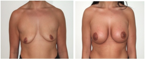 Figure 3 Low nipple position with a difference in nipple height. Result after minimal scar breast lift and augmentation.